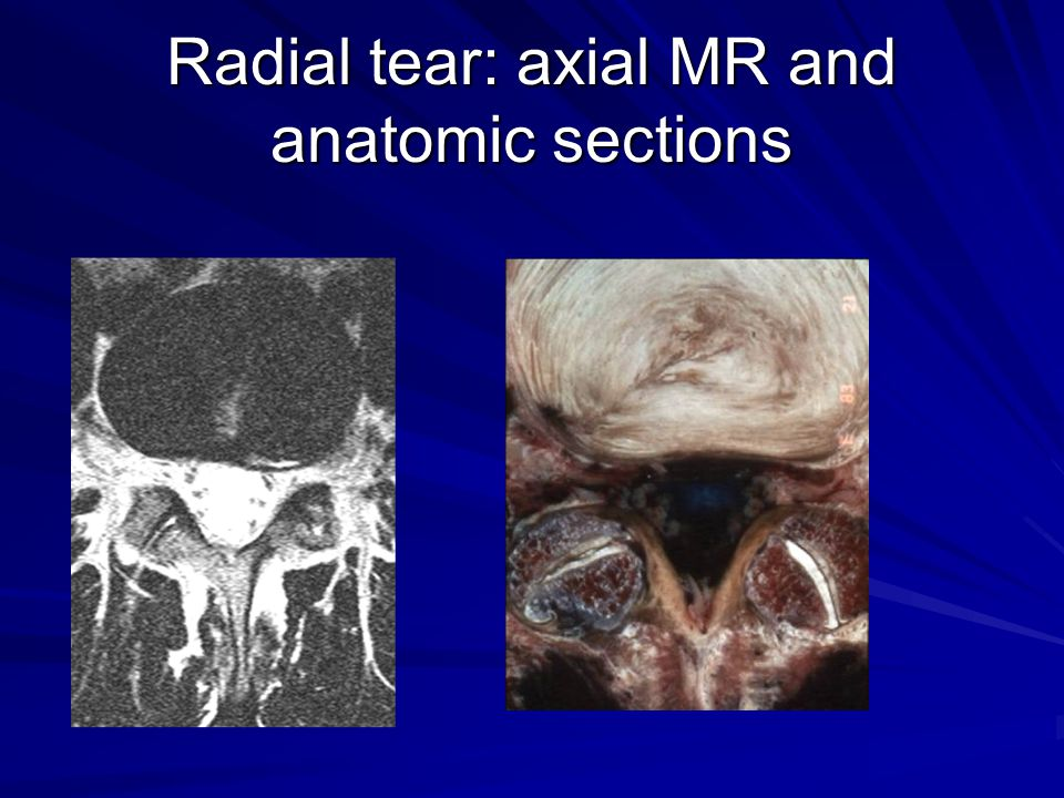 Radial tear: axial MR and anatomic sections