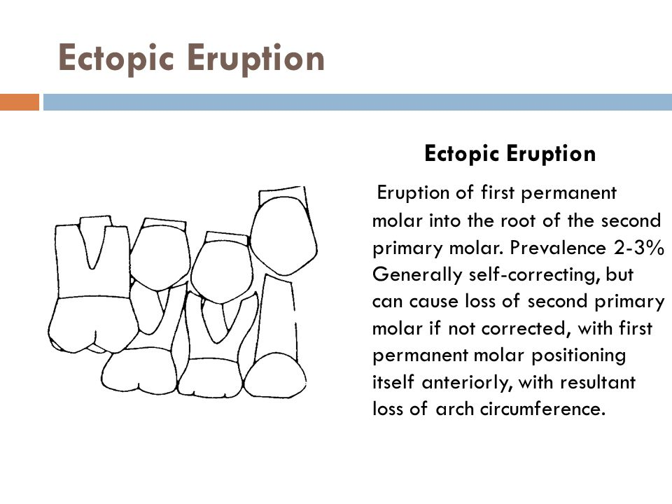 Ectopic Eruption Ectopic Eruption Eruption of first permanent molar into the root of the second primary molar. Prevalence 2-3% Generally self-correcti