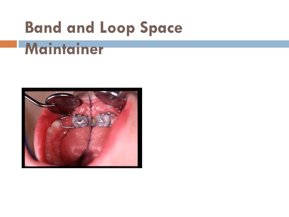 Band and Loop Space Maintainer
