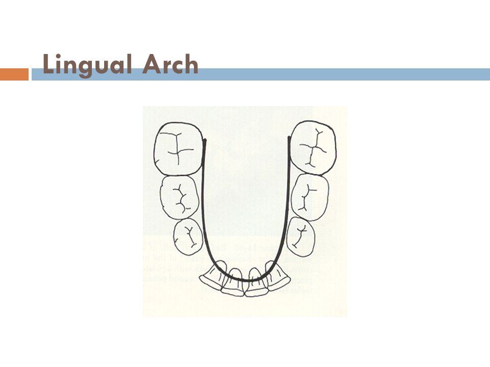 Lingual Arch
