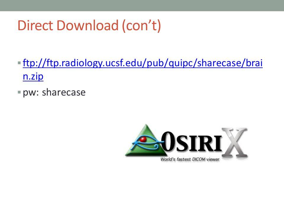 Direct Download (cont) ftp://ftp.radiology.ucsf.edu/pub/quipc/sharecase/brai n.zip ftp://ftp.radiology.ucsf.edu/pub/quipc/sharecase/brai n.zip pw: sha
