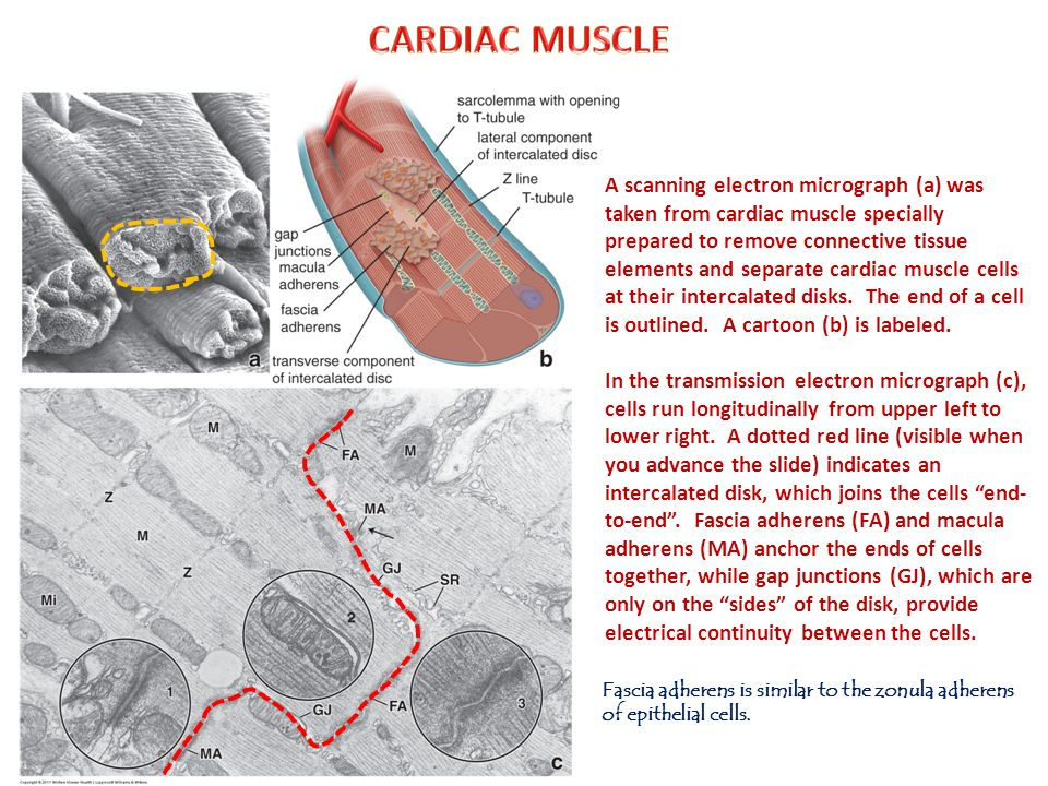 A scanning electron micrograph (a) was taken from cardiac muscle specially prepared to remove connective tissue elements and separate cardiac muscle cells at their intercalated disks.