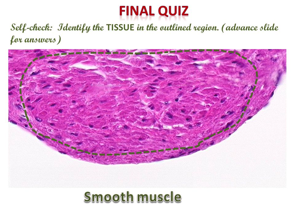 Self-check: Identify the TISSUE in the outlined region. (advance slide for answers)