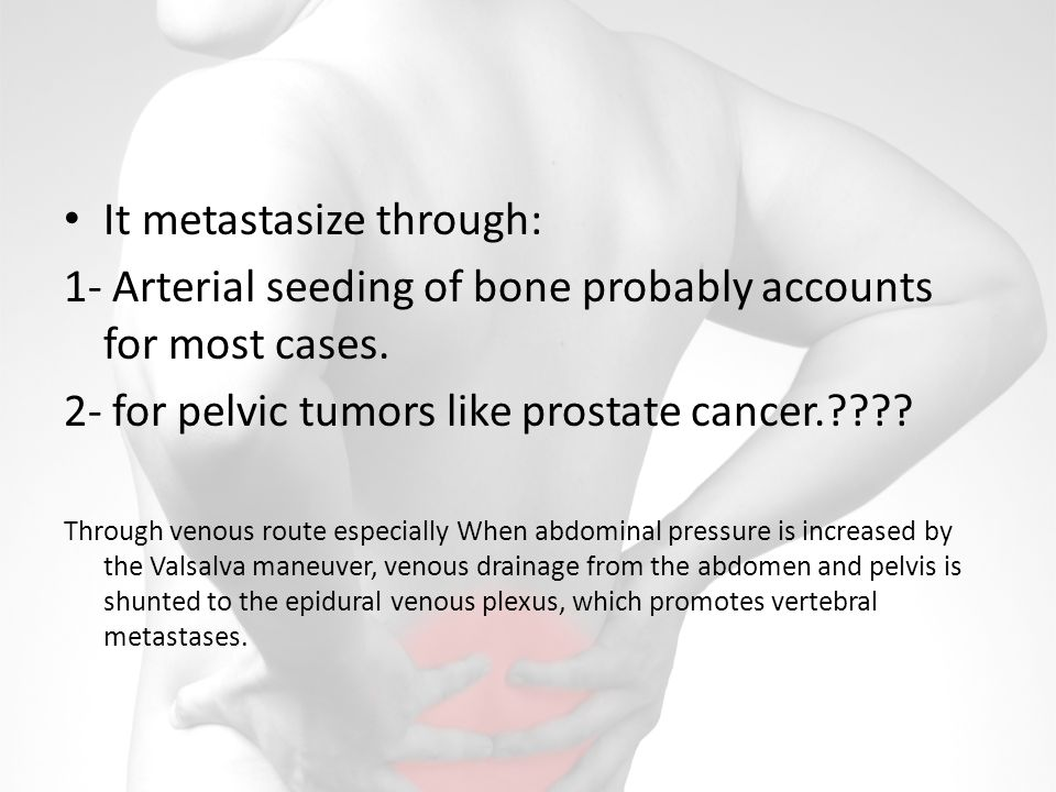 It metastasize through: 1- Arterial seeding of bone probably accounts for most cases.