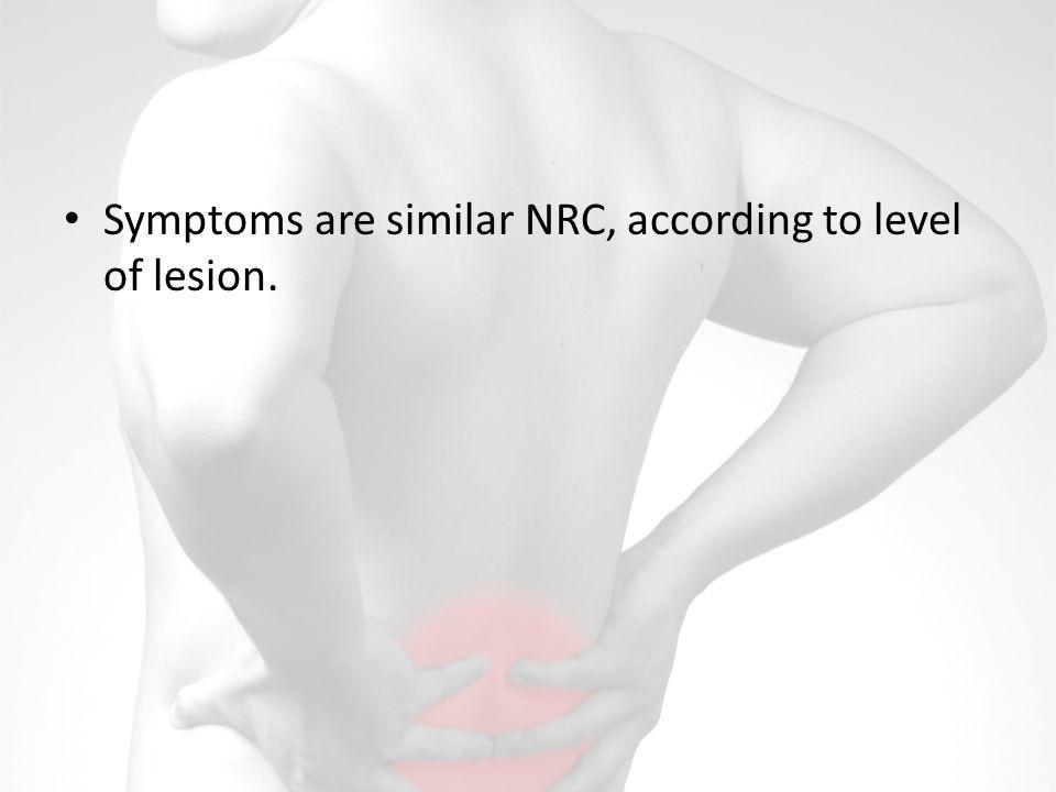 Symptoms are similar NRC, according to level of lesion.