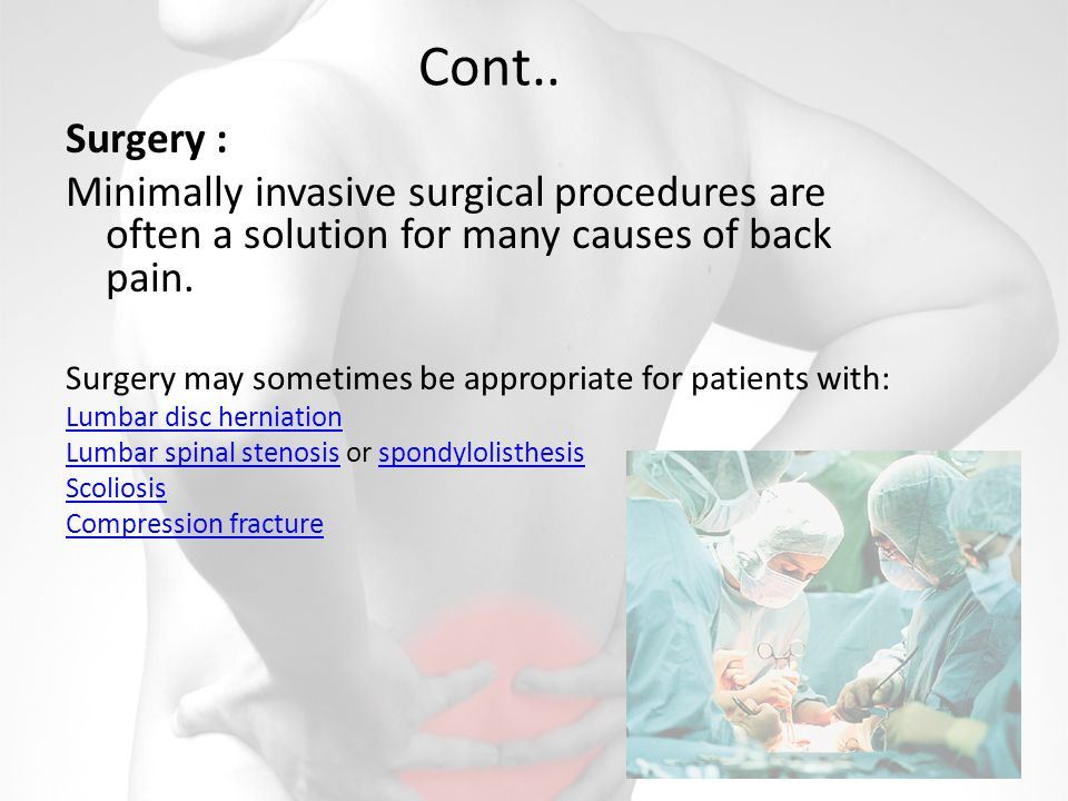Cont.. Surgery : Minimally invasive surgical procedures are often a solution for many causes of back pain. Surgery may sometimes be appropriate for pa