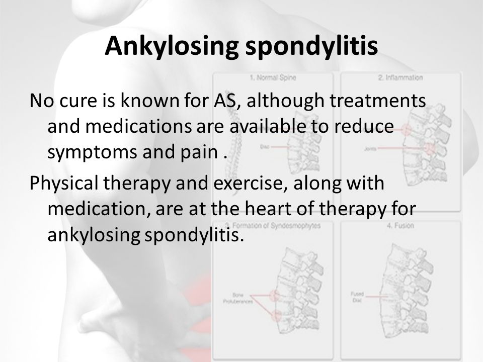 Ankylosing spondylitis No cure is known for AS, although treatments and medications are available to reduce symptoms and pain.