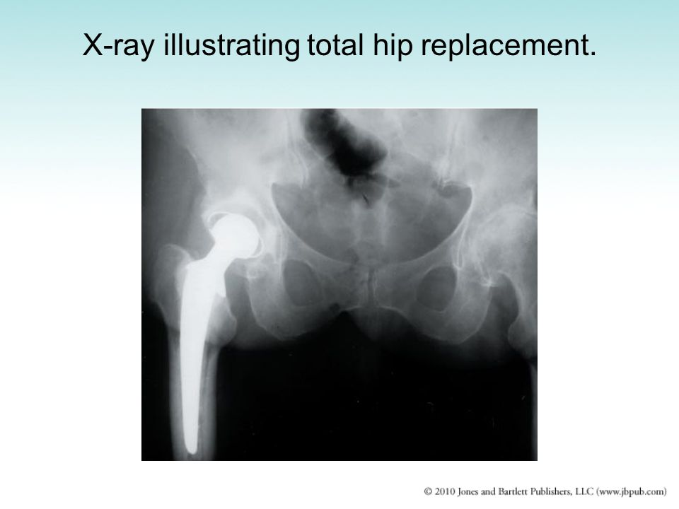 X-ray illustrating total hip replacement.