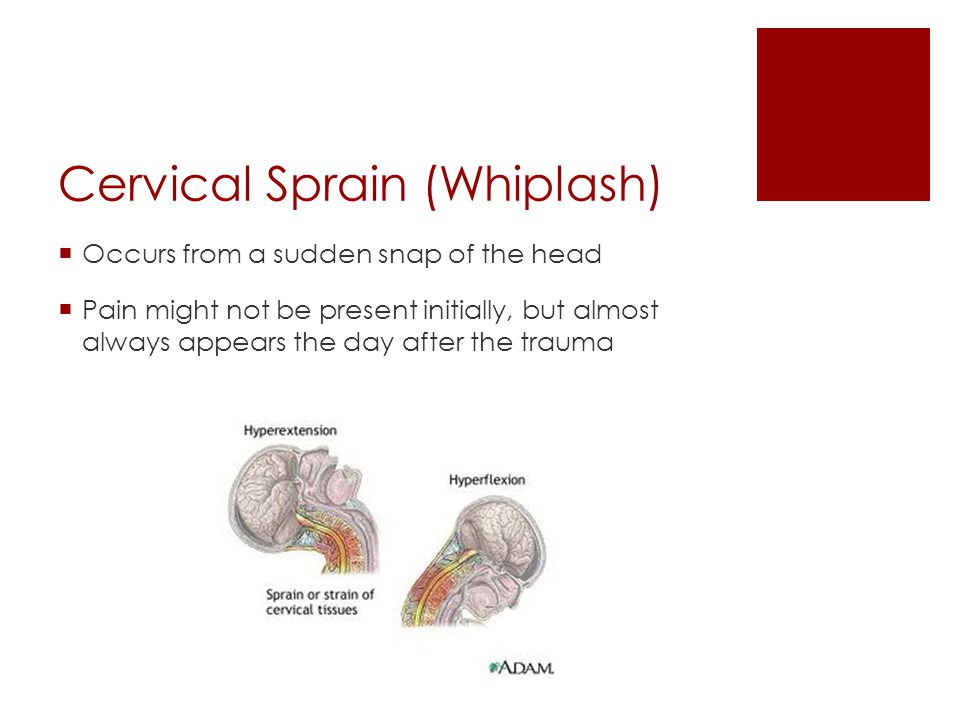 Cervical Sprain (Whiplash) Occurs from a sudden snap of the head Pain might not be present initially, but almost always appears the day after the trau