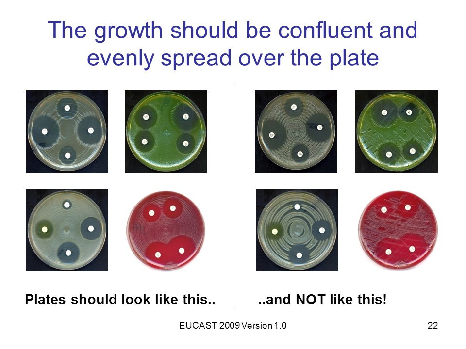 EUCAST 2009 Version 1.022 The growth should be confluent and evenly spread over the plate Plates should look like this....and NOT like this!