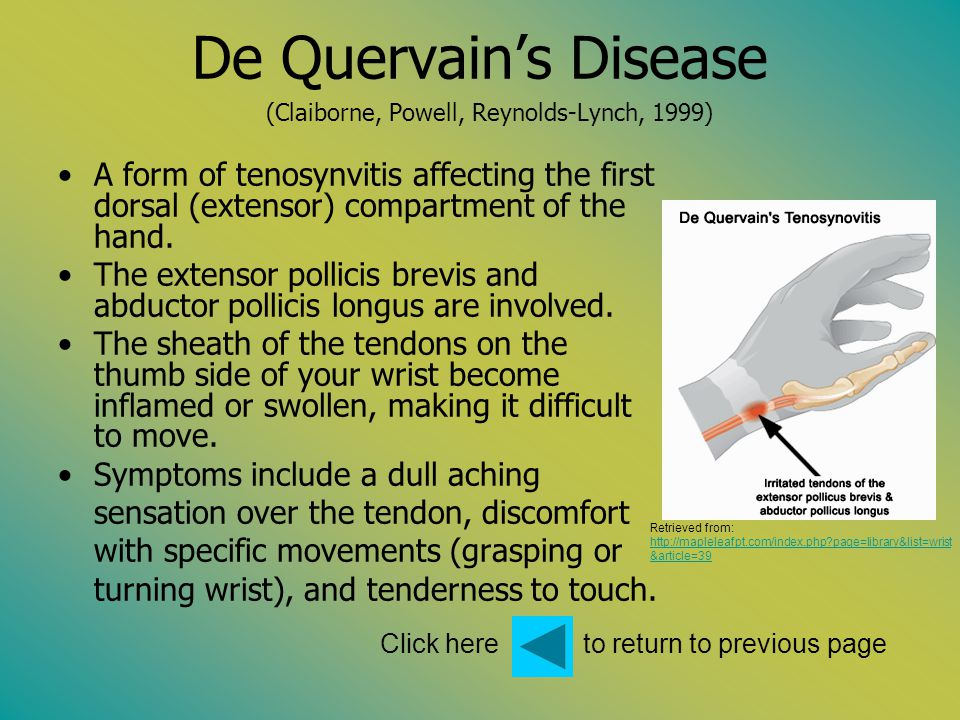 Click here to return to previous page De Quervains Disease (Claiborne, Powell, Reynolds-Lynch, 1999) A form of tenosynvitis affecting the first dorsal