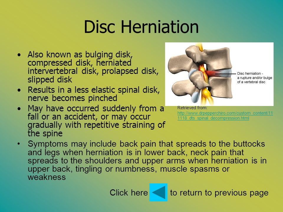 Disc Herniation Also known as bulging disk, compressed disk, herniated intervertebral disk, prolapsed disk, slipped disk Results in a less elastic spi