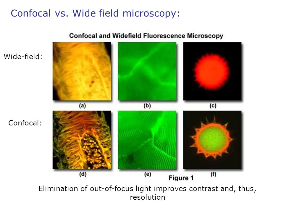 Wide-field: Confocal: Elimination of out-of-focus light improves contrast and, thus, resolution Confocal vs. Wide field microscopy: