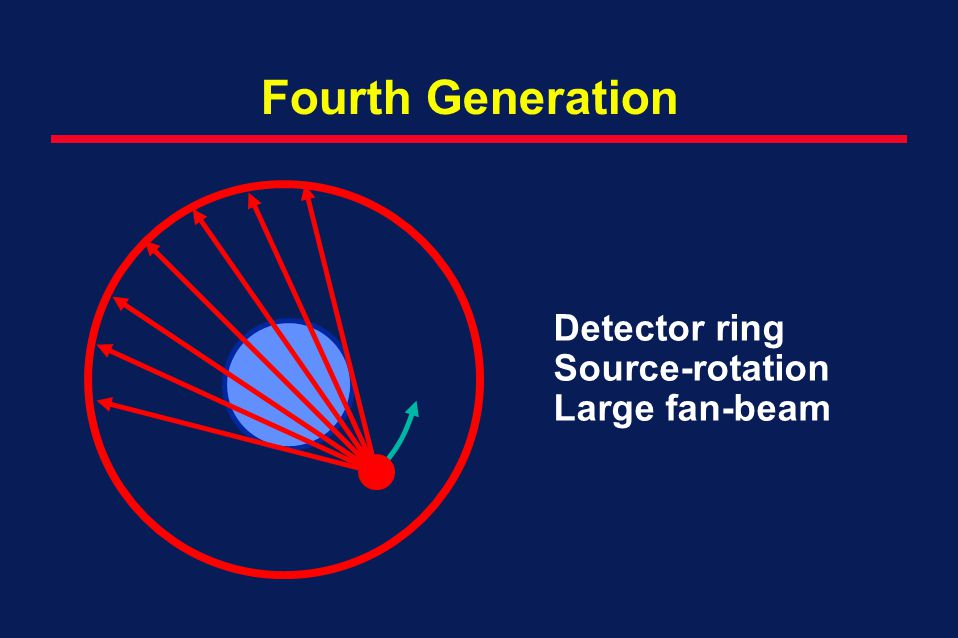 Fourth Generation Detector ring Source-rotation Large fan-beam