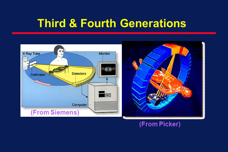 Third & Fourth Generations (From Picker) (From Siemens)