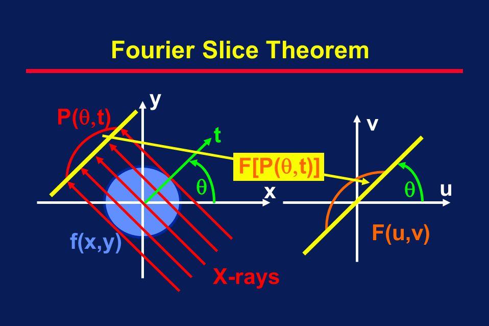 Fourier Slice Theorem v u F(u,v) P( t) f(x,y) t y x X-rays F[P( t)]