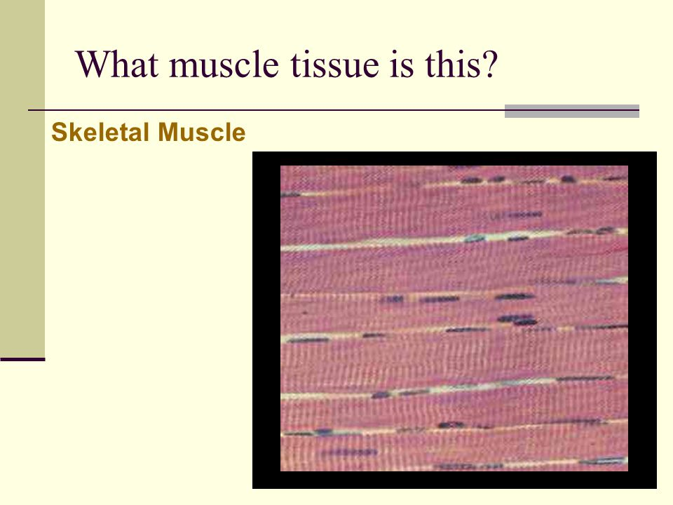 What muscle tissue is this? Skeletal Muscle