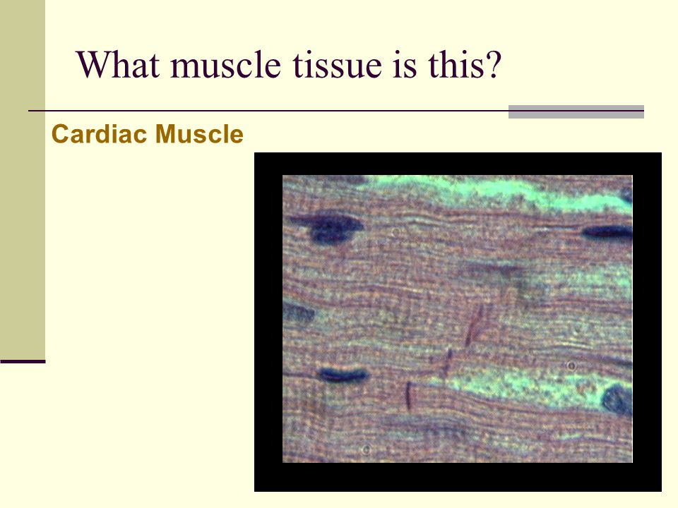 What muscle tissue is this? Cardiac Muscle