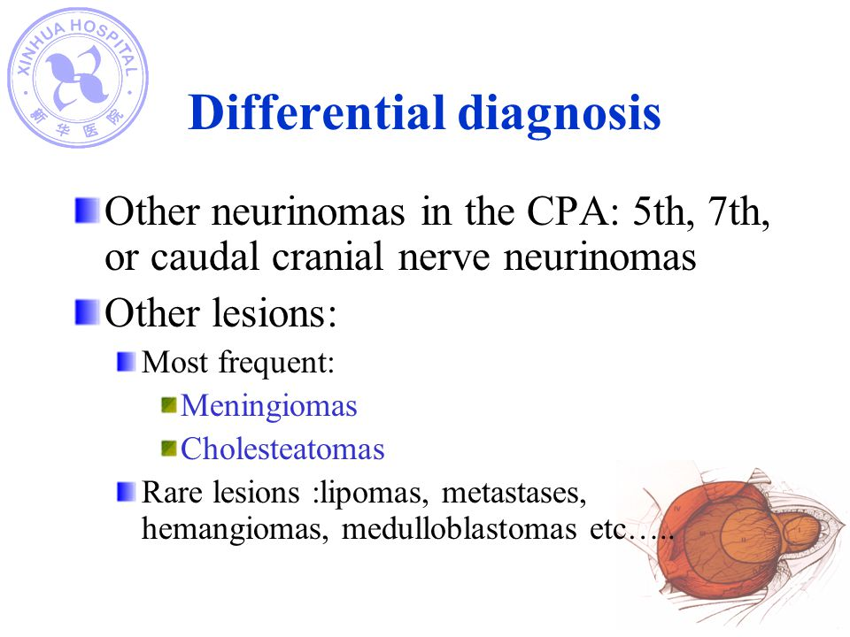 Differential diagnosis Other neurinomas in the CPA: 5th, 7th, or caudal cranial nerve neurinomas Other lesions: Most frequent: Meningiomas Cholesteato