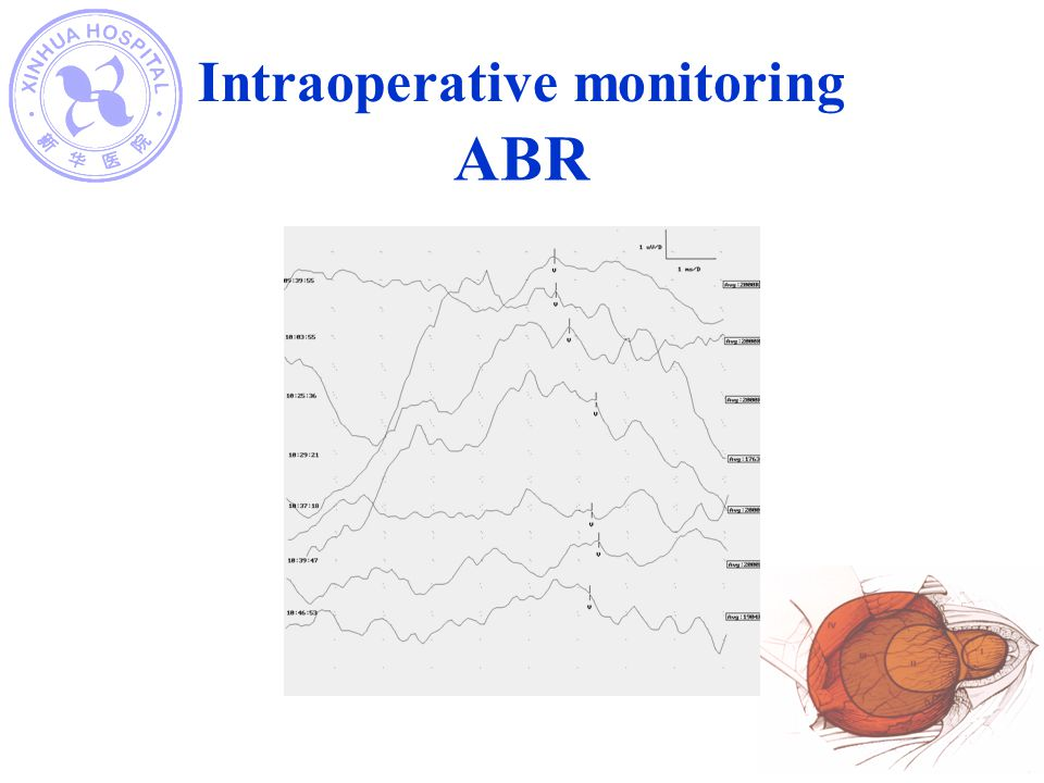 ABR Intraoperative monitoring