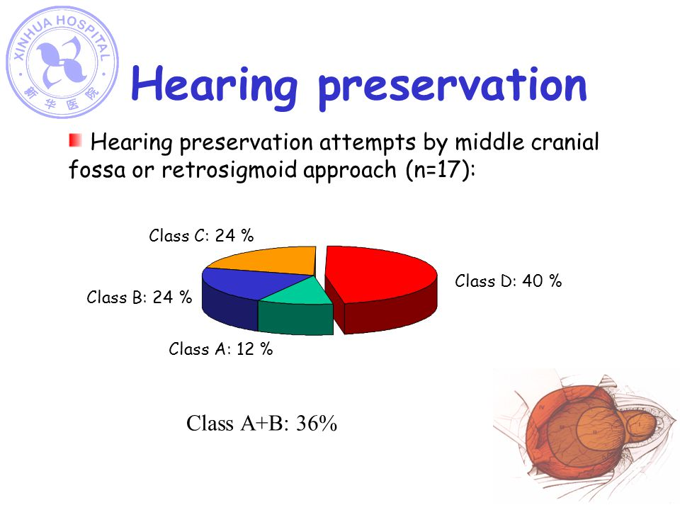 Hearing preservation Hearing preservation attempts by middle cranial fossa or retrosigmoid approach (n=17): Class D: 40 % Class A: 12 % Class C: 24 %