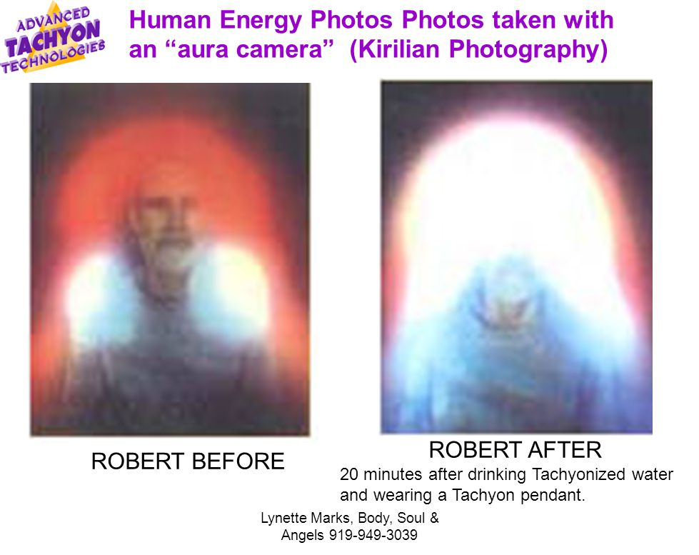 Lynette Marks, Body, Soul & Angels 919-949-3039 ROBERT BEFORE ROBERT AFTER 20 minutes after drinking Tachyonized water and wearing a Tachyon pendant.
