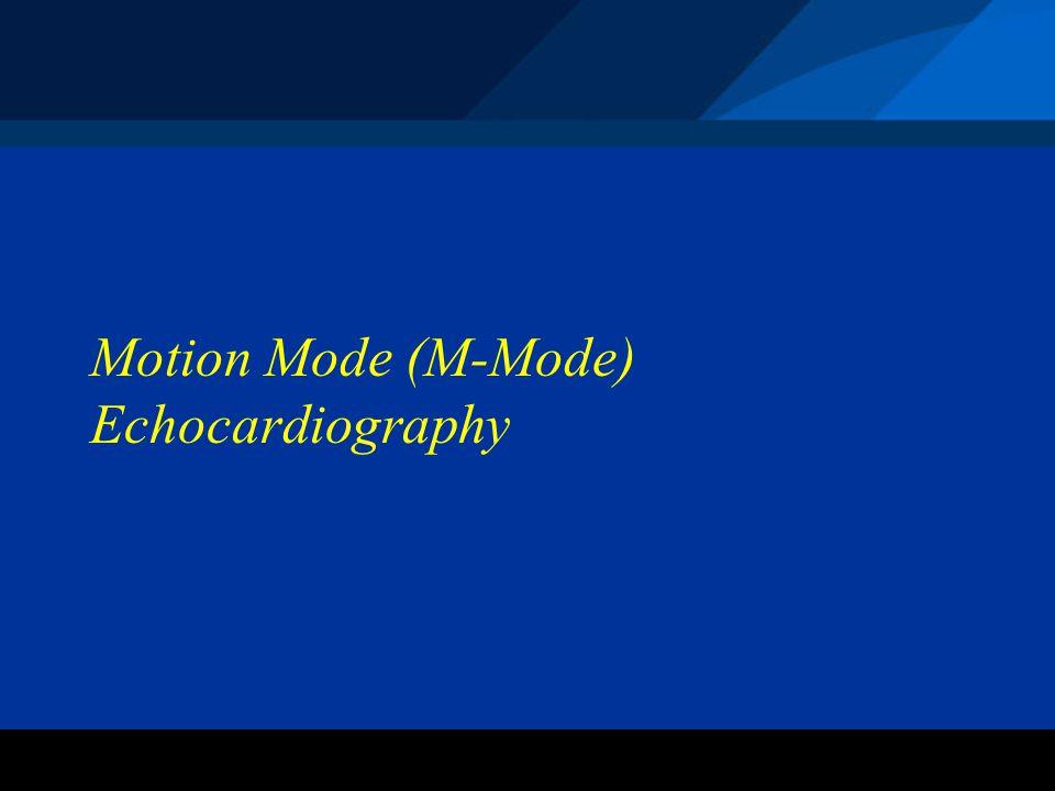 ©2004 St. Jude Medical CRMD Motion Mode (M-Mode) Echocardiography