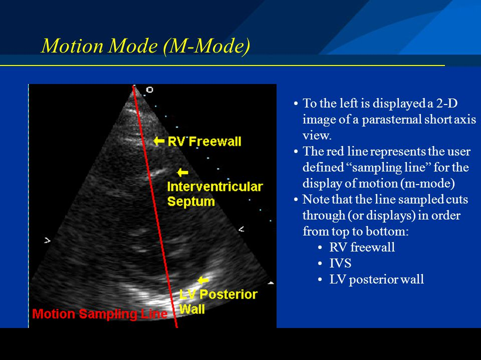 ©2004 St. Jude Medical CRMD Motion Mode (M-Mode) To the left is displayed a 2-D image of a parasternal short axis view. The red line represents the us
