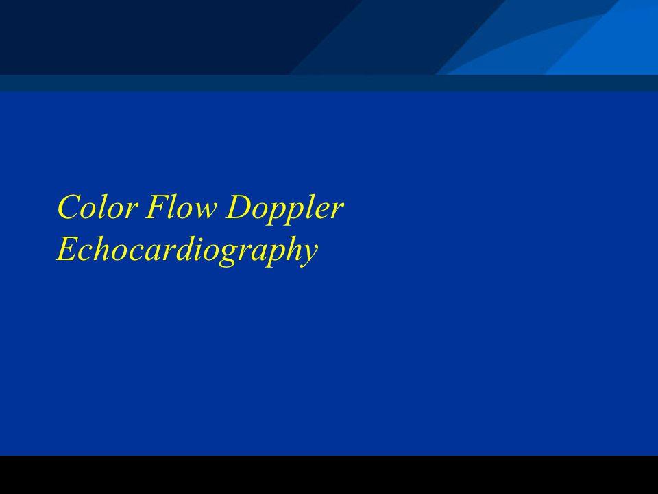 ©2004 St. Jude Medical CRMD Color Flow Doppler Echocardiography