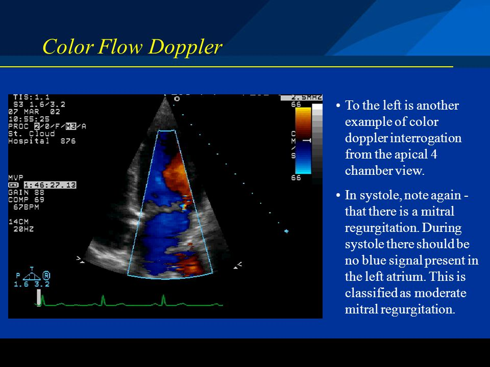 ©2004 St. Jude Medical CRMD Color Flow Doppler To the left is another example of color doppler interrogation from the apical 4 chamber view. In systol