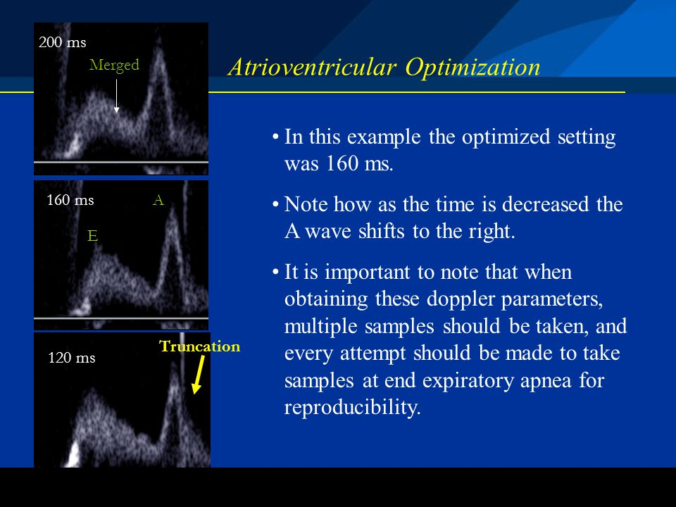 ©2004 St. Jude Medical CRMD Atrioventricular Optimization 160 ms In this example the optimized setting was 160 ms. Note how as the time is decreased t