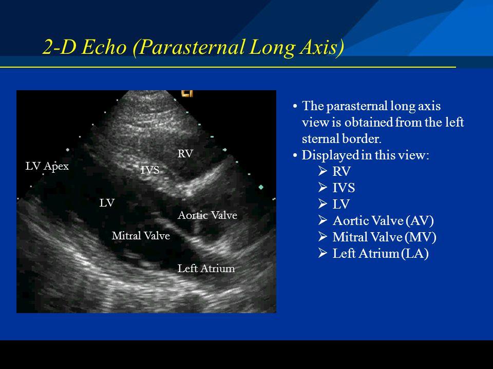 ©2004 St. Jude Medical CRMD 2-D Echo (Parasternal Long Axis) The parasternal long axis view is obtained from the left sternal border. Displayed in thi