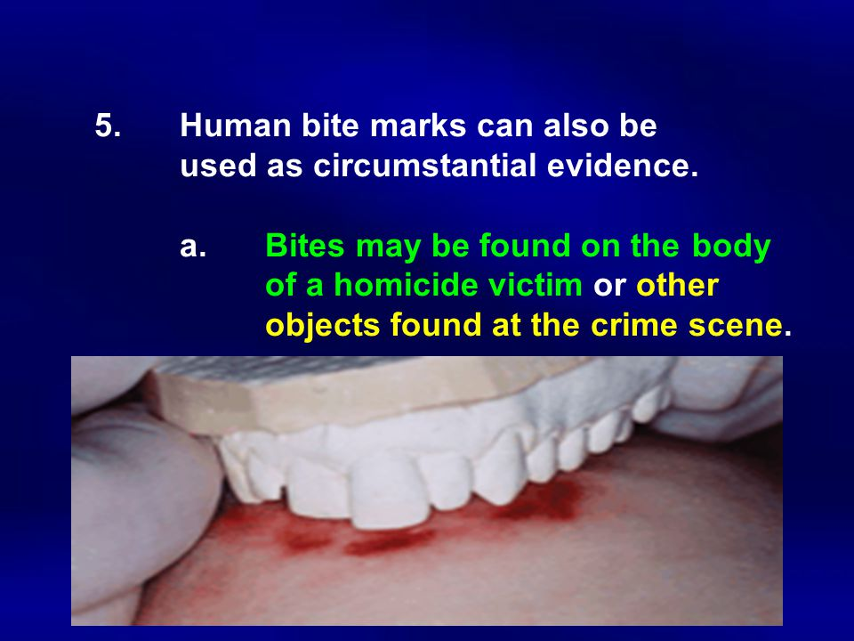 5.Human bite marks can also be used as circumstantial evidence. a.Bites may be found on the body of a homicide victim or other objects found at the cr