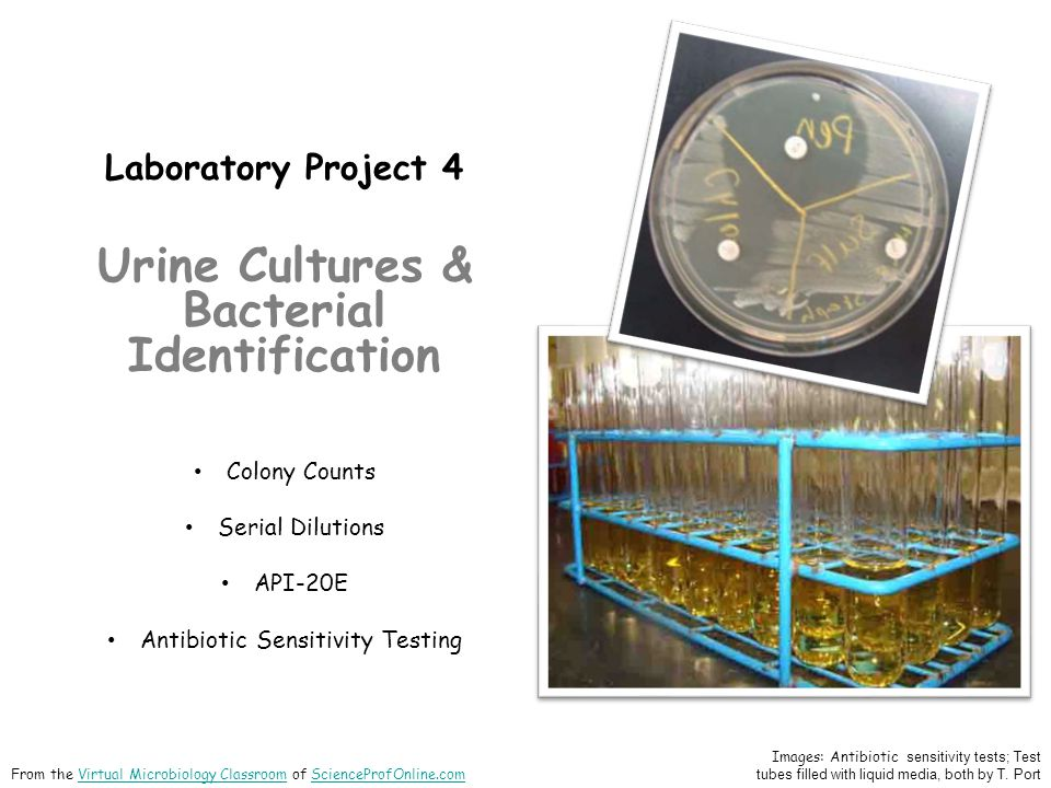 Laboratory Project 4 Urine Cultures & Bacterial Identification Colony Counts Serial Dilutions API-20E Antibiotic Sensitivity Testing Images: Antibioti