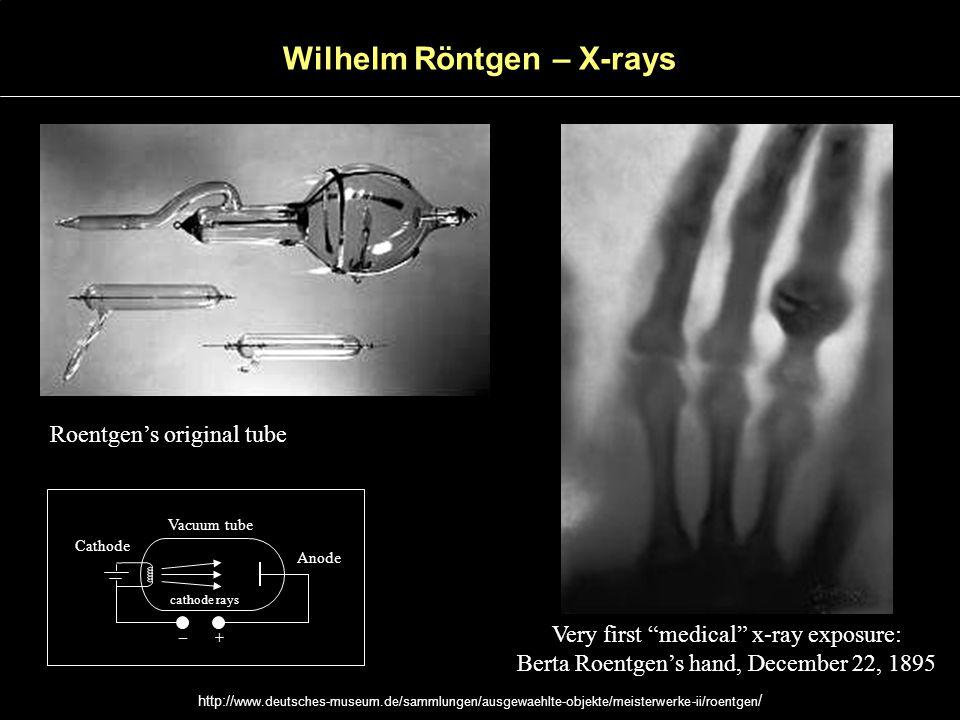 Roentgens original tube Very first medical x-ray exposure: Berta Roentgens hand, December 22, 1895 Cathode Anode Vacuum tube – + cathode rays Wilhelm Röntgen – X-rays http:// www.deutsches-museum.de/sammlungen/ausgewaehlte-objekte/meisterwerke-ii/roentgen /