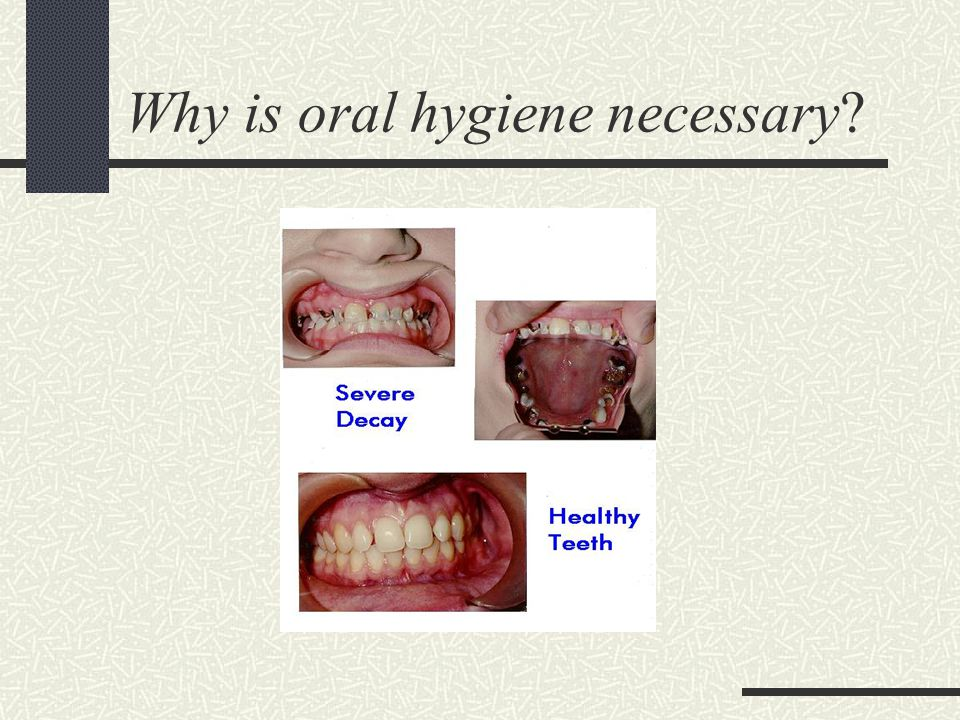 Why is oral hygiene necessary?