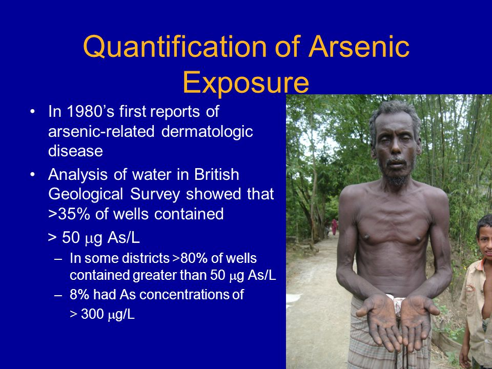 Quantification of Arsenic Exposure In 1980s first reports of arsenic-related dermatologic disease Analysis of water in British Geological Survey showed that >35% of wells contained > 50 g As/L –In some districts >80% of wells contained greater than 50 g As/L –8% had As concentrations of > 300 g/L
