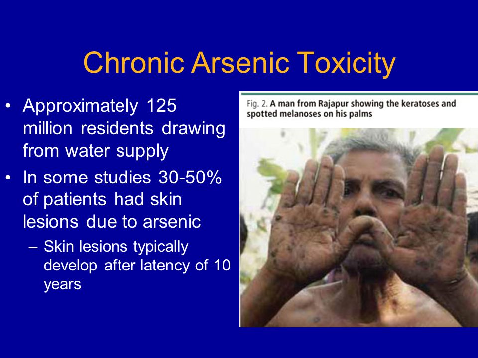 Chronic Arsenic Toxicity Approximately 125 million residents drawing from water supply In some studies 30-50% of patients had skin lesions due to arsenic –Skin lesions typically develop after latency of 10 years
