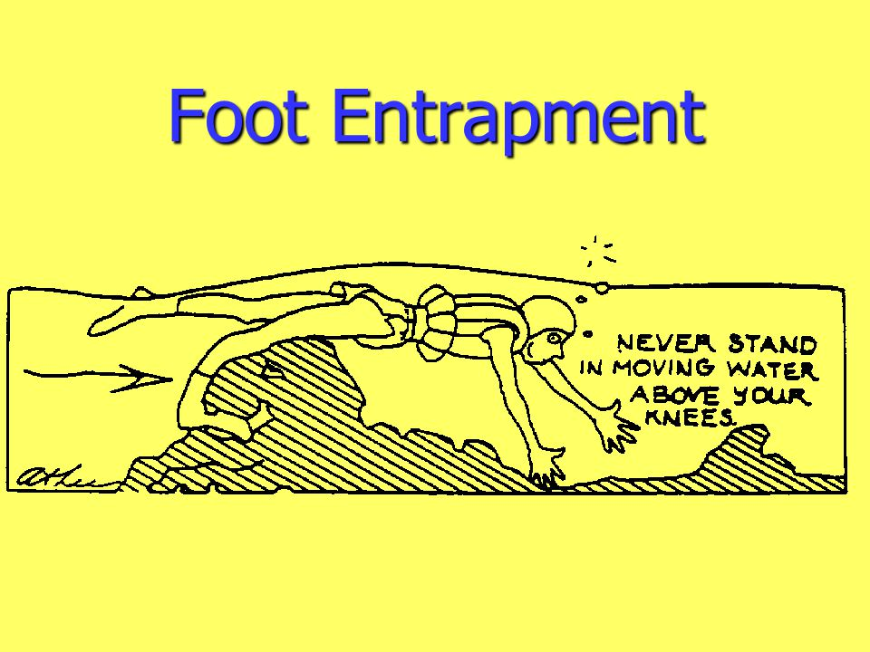 Foot Entrapment