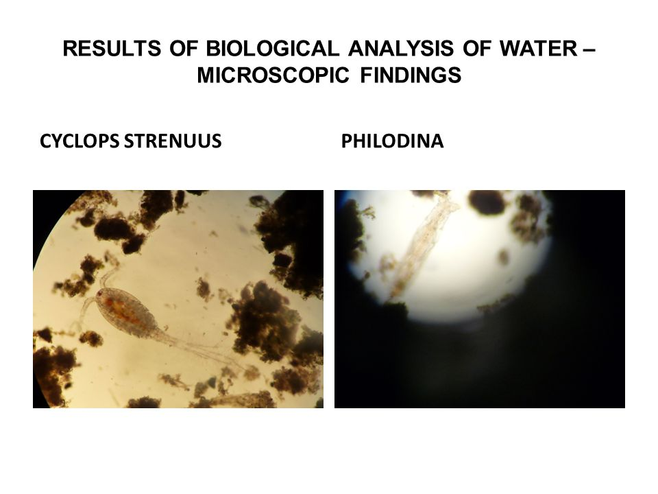 RESULTS OF BIOLOGICAL ANALYSIS OF WATER – MICROSCOPIC FINDINGS CYCLOPS STRENUUSPHILODINA