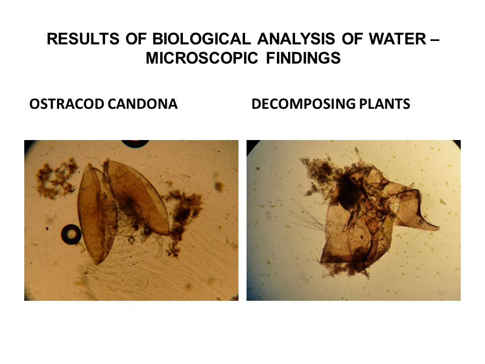 RESULTS OF BIOLOGICAL ANALYSIS OF WATER – MICROSCOPIC FINDINGS OSTRACOD CANDONADECOMPOSING PLANTS