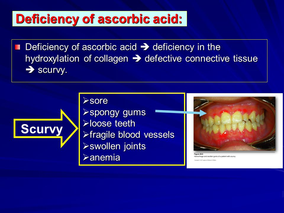 Deficiency of ascorbic acid: Deficiency of ascorbic acid deficiency in the hydroxylation of collagen defective connective tissue scurvy. sore sore spo