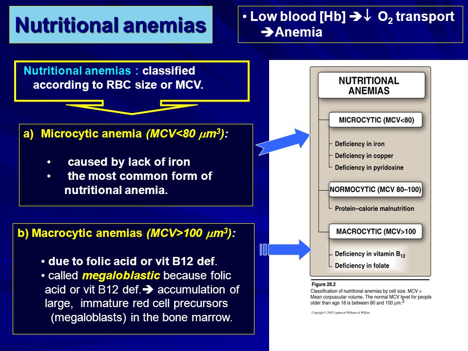 –Lack of intrinsic factor prevents vitamin B12 absorption pernicious anemia.
