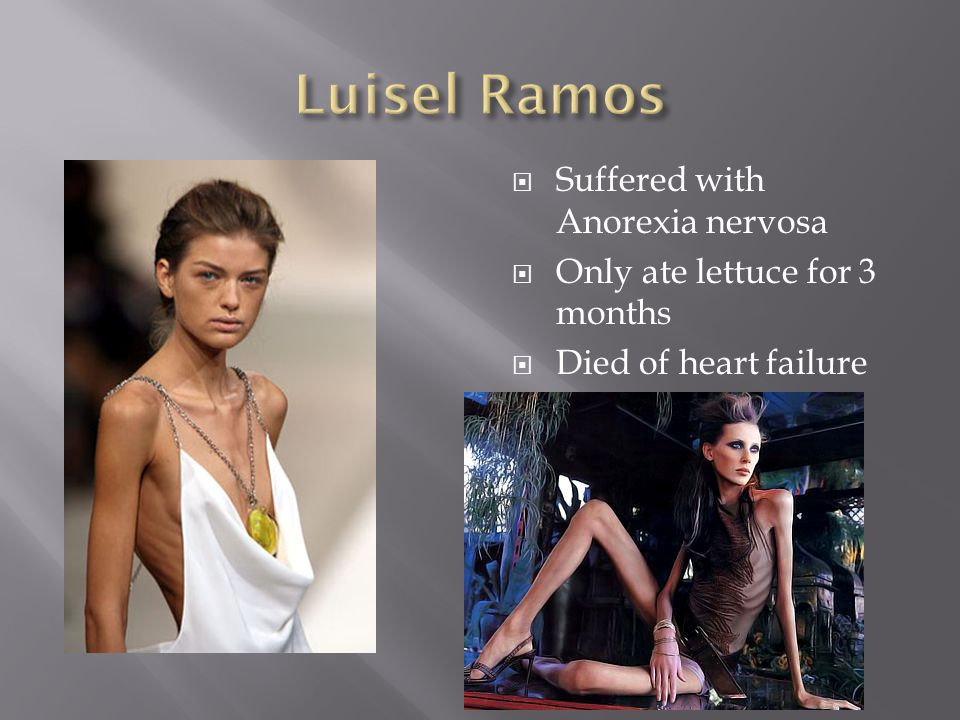 Suffered with Anorexia nervosa Only ate lettuce for 3 months Died of heart failure