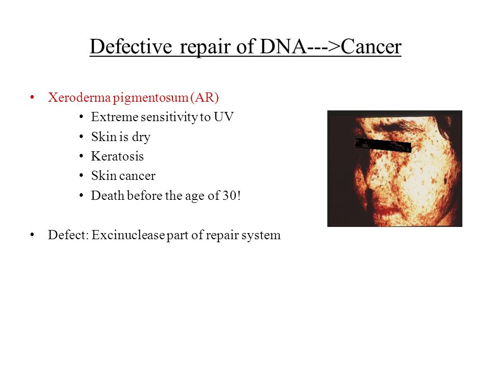 Defective repair of DNA--->Cancer Xeroderma pigmentosum (AR) Extreme sensitivity to UV Skin is dry Keratosis Skin cancer Death before the age of 30! D