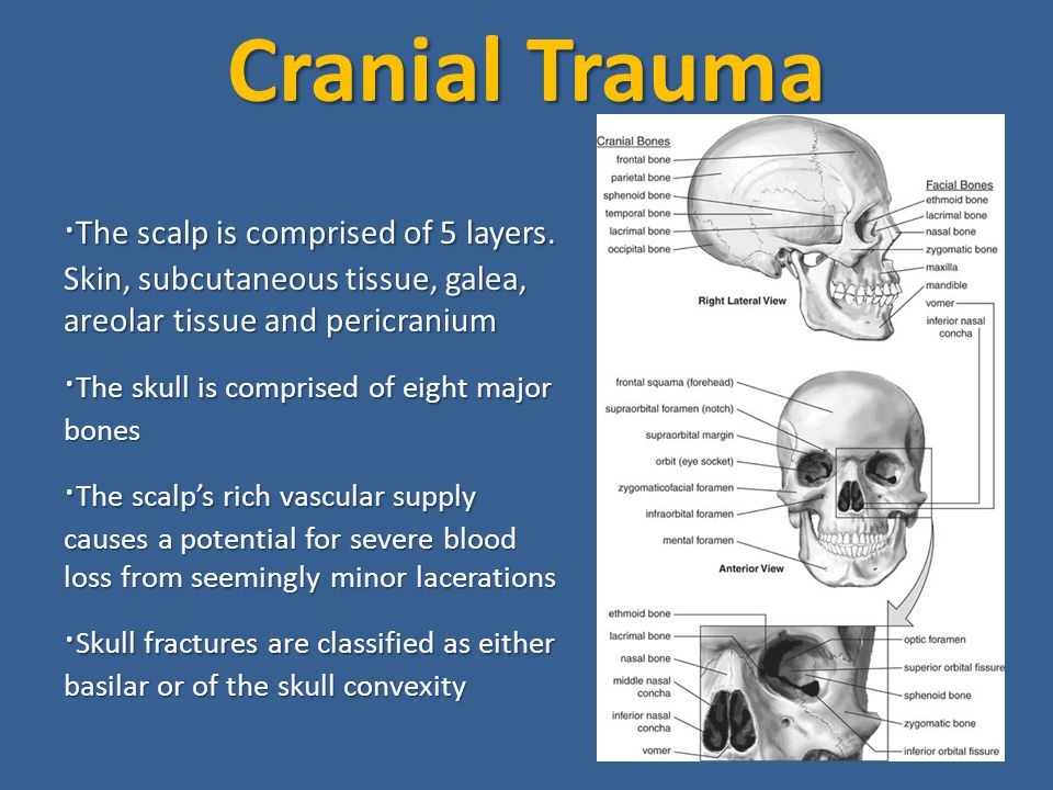 Cranial Trauma · The scalp is comprised of 5 layers.