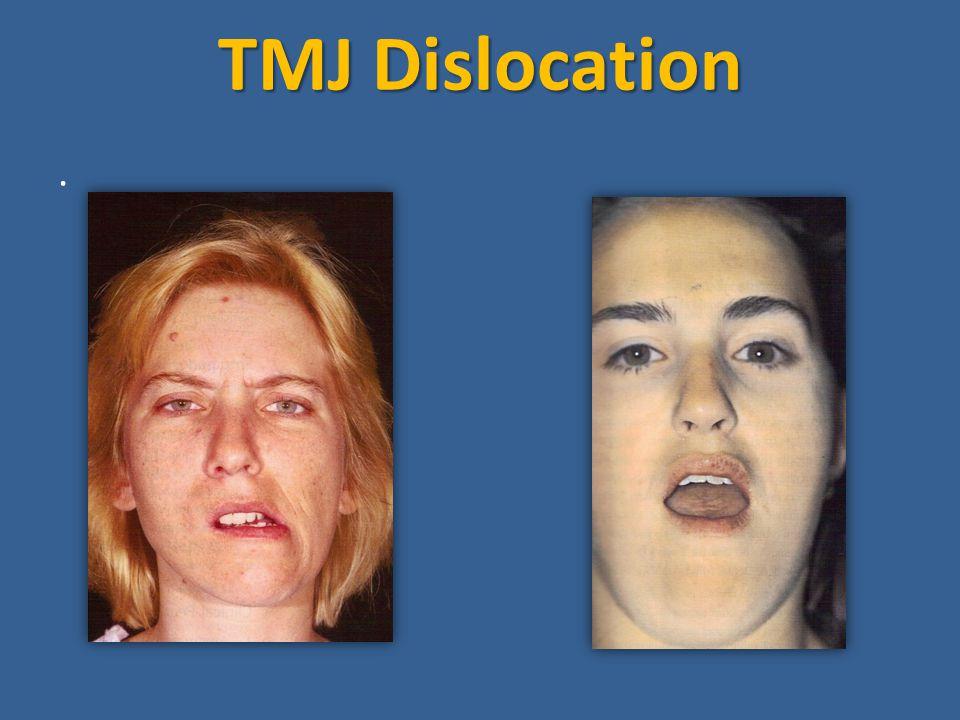 TMJ Dislocation ·