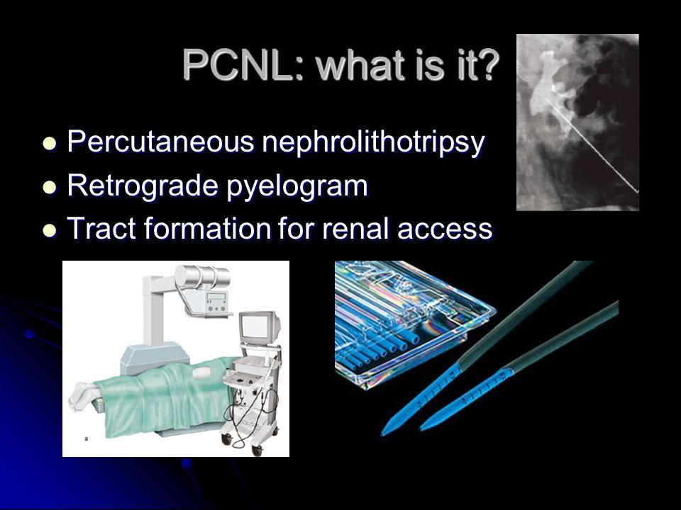 PCNL: what is it? Stone fragmentation & retrieval Stone fragmentation & retrieval