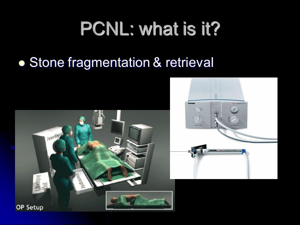 MPCNL: the technique