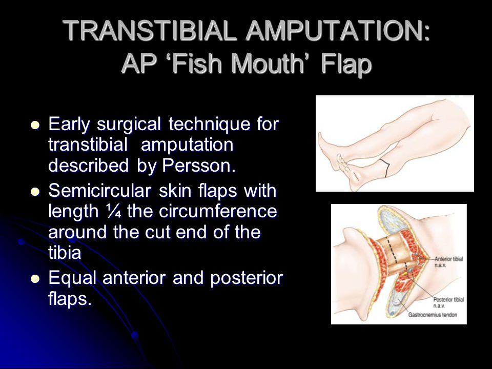 TRANSTIBIAL AMPUTATION: AP Fish Mouth Flap Early surgical technique for transtibial amputation described by Persson. Early surgical technique for tran